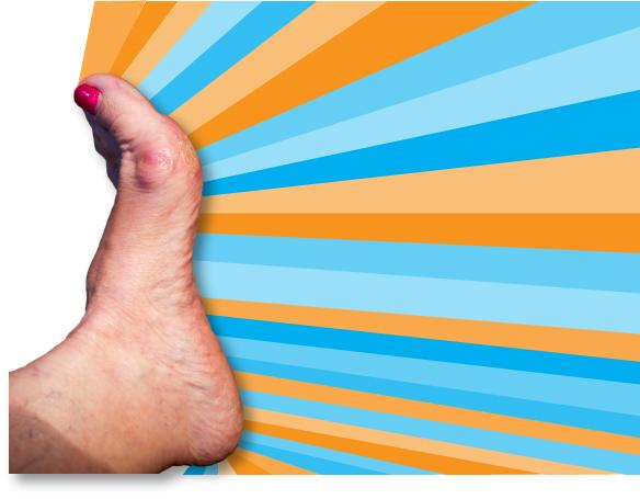 ms_bockles_left_foot